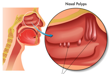Nasal polyps—small, noncancerous growths block the nasal passage—can cause a loss of smell.