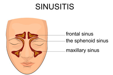 sinusitis symptoms