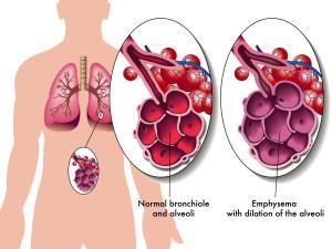 emphysema diagram