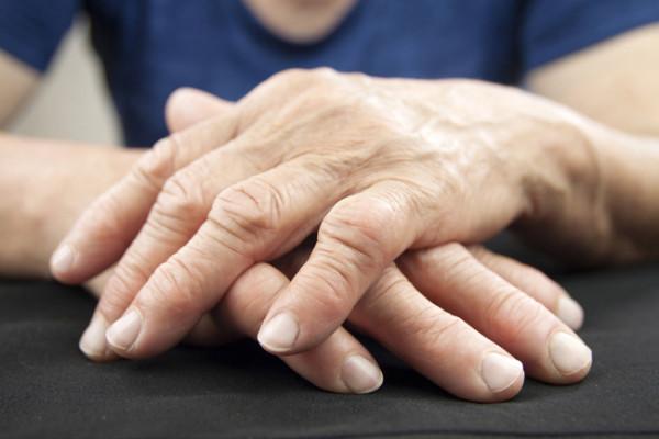 what is arthritis