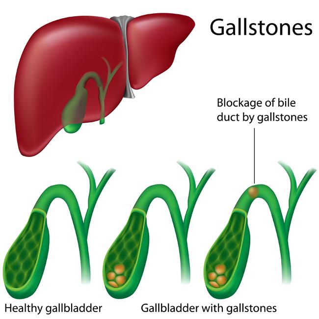 gallbladder attack