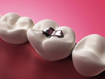 "Almost half of US dentists still use dental amalgam fillings (""silver"" fillings), which contain about 50% mercury."