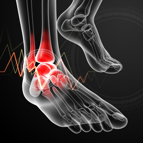 ankle replacement surgery