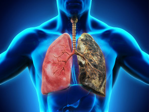 COPD riddled lung