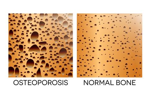 understanding t score bone density - osteoporosis vs normal bone