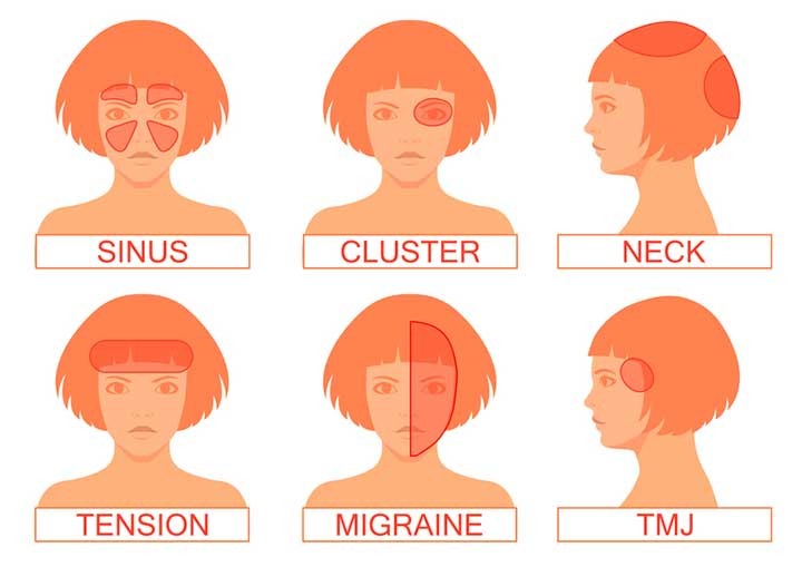 types of headache and location meaning
