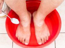 baking soda home remedies for toenail fungus