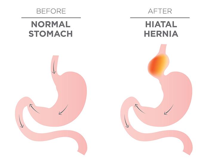 hiatal hernia pain relief