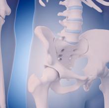 osteoporosis -3.0
