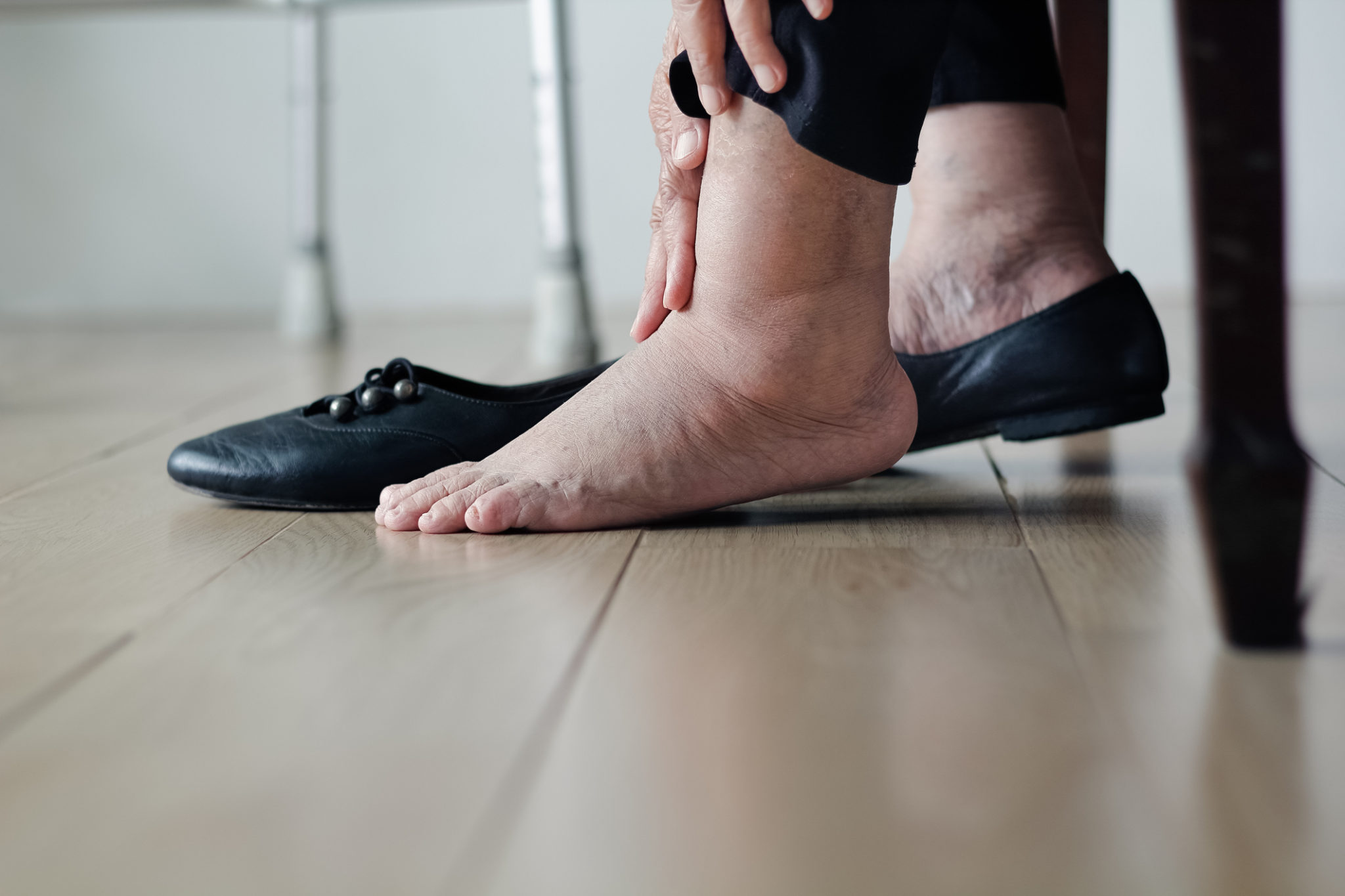 swollen feet and legs