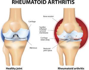 rheumatoid arthritis vs normal joints