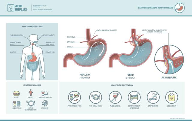 how acid reflux causes heartburn